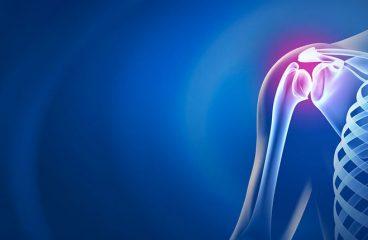 Department of Orthopedics